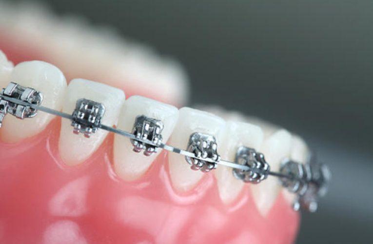 [新聞] 牙齒矯正多少錢一般多少錢一個